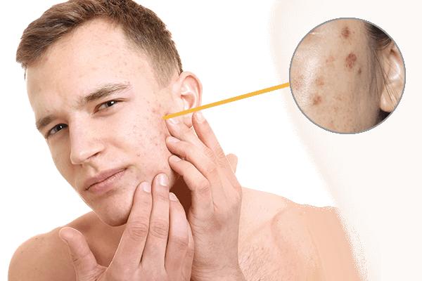 Skin Pigmentation in Men